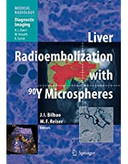 Liver Radioembolization with 90Y Microspheres