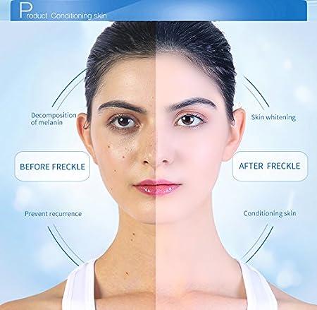 Crema Hidratante, Crema Blanqueadora Facial, Crema Eliminar Pecas Manchas, Crema Natural Anti-Envejecimiento Loción, Facial Hidratar Esencia para Mujer Y Hombre