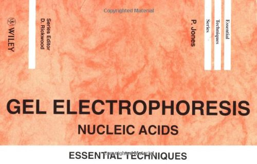 Gel Electrophoresis: Nucleic Acids: Essential Techniques