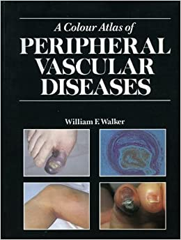 A Colour Atlas of Peripheral Vascular Diseases