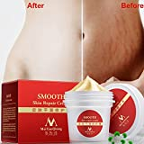 Stretch Marks & Scar Removal Cream - Scar Away Treatment Serum Gel - for Boby Face Burns C Section Old Scar Surgical Scars - Firming & Tightening Skin - 100% Proven Safe, Effective for Man Woman 35g