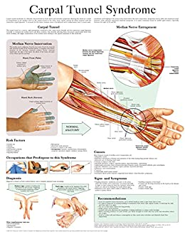 Carpal Tunnel Syndrome e chart: Full illustrated