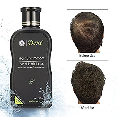 LuckyFine Anti-hair Loss Hair Shampoo for Both Men and Women Hair Regrowth Treatment Hair Loss Care Products 200ml