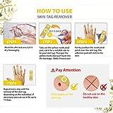 Samsali Skin Tag Remover Pads, 24 Pads