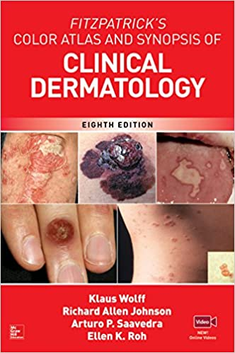 Fitzpatricks color atlas and synopsis of clinical dermatology fitzpatricks color atlas and synopsis of clinical dermatology eighth edition 8th edition kindle edition fandeluxe Choice Image