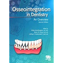 Osseointegration in Dentistry: An Introduction