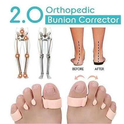 Corrector de juanetes ortopédico 2.0 (1 par)