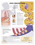High Cholesterol Anatomical Chart, Anatomical Chart Company Staff, 158779912X