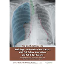 The Unofficial Guide to Radiology: 100 Practice Chest X Rays with Full Colour Annotations and Full X Ray Reports