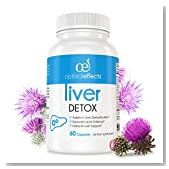Natural Liver Cleanse Detox Supplement by Optimal Effects - Improve Digestion Healthy Liver Support - All Natural Detox Formula to Remove Toxins - Powerful Antioxidant - Milk Thistle Ext. 60 caps (1)