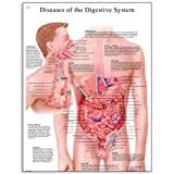 3B Scientific VR1431L Glossy Laminated Paper Diseases of Digestive System Anatomical Chart, Poster Size 20'' Width x 26'' Height
