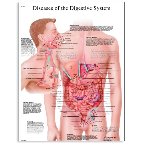 - 3B Scientific VR1431L Glossy Laminated Paper Diseases of Digestive System Anatomical Chart, Poster Size 20