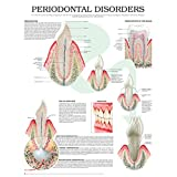 Periodontal disorders e chart: Full illustrated