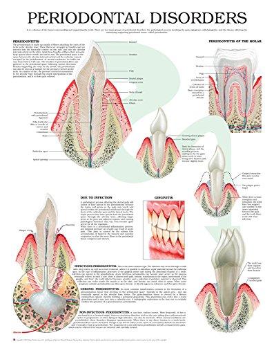 Periodontal disorders e chart: Full illustrated