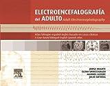 Electroencefalografía del adulto: Atlas bilingüe español-inglés basado en casos clínicos (Spanish Edition)