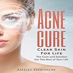 Acne Cure Clear Skin for Life Audiobook