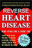 DO NOT SUBMIT TO ANY HEART DISEASE OR STROKE TREATMENT UNTIL YOU'VE READ THIS BOOK THE PROVEN CURE TO REVERSE OR AVOID HEART DISEASE & STROKE … READ MOREInternational #1 Best Selling AuthorAmazon #1 Best Selling AuthorCHRISTOPHER DAVID ALLENRever...