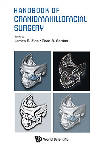 Download Handbook of Craniomaxillofacial Surgery Pdf