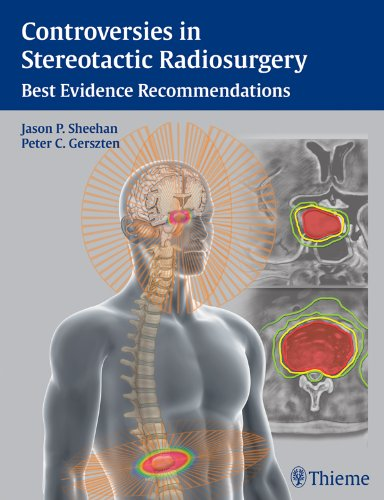 Controversies in Stereotactic Radiosurgery Best Evidence Recommendations (1st 2013) [Sheehan & Gerszten]