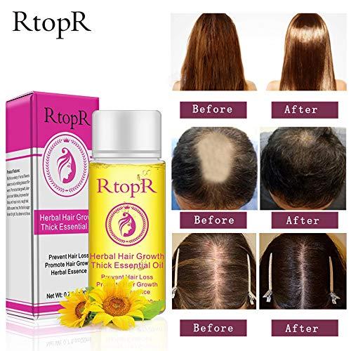 Clearance!!! Hongxin Professional Anti Hair Loss Hair Growth Liquid Spray for Women Men Hair Regrowth Dry Hair Repair Moisturizer Treatment Serum Creative Gift for Her (1 pcs)