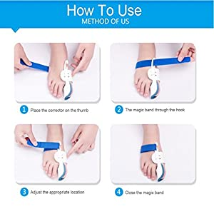 5Pcs Bunion Corrector Adjustable Bunion Splint Night Time Soft Gel for Bunion Relief, Bunion Corrector and Bunion Relief Protector Brace Kit for Big Toes, Bunion Pads, Toe Straightener, Toe Separators