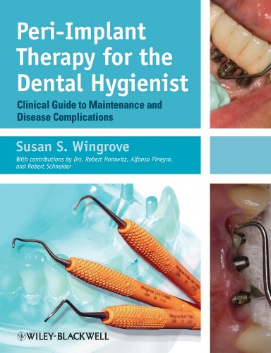 Dental Hygienists Guide - Peri-Implant Therapy for the Dental Hygienist: Clinical Guide to Maintenance and Disease Complications