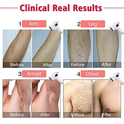 Permanent Hair Removal IMENE IPL Laser Hair Removal & Ice Compress, Perfect for Women & Men Home Hair Removal Permanent on Bikini line, Legs, Arms, Armpits - Super Long Life Span with 500,000 Flashes