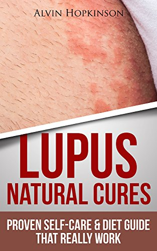 Lupus Natural Cures: Proven Self-Care Guide & Diet That Really Work (Top Rated 30-min Series)