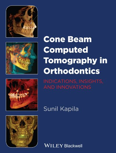 Download Cone Beam Computed Tomography in Orthodontics: Indications, Insights, and Innovations Pdf