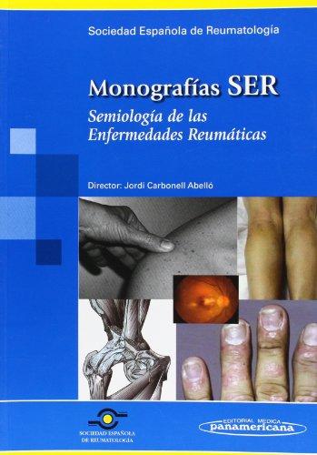 Monografias Ser - Semiologia De Las Enfermedades Reumaticas (Spanish Edition)
