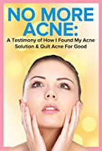 ACNE: Does it rule your life?If you're anything like how I was you feel constantly aware of your skin on your face. You think everyone is staring at your acne and feel insanely self-conscious in front of the opposite sex. For 17 years I strug...