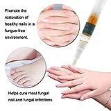 Toenail Fungus Treatment,Nail Fungus treatment pens,Fungus Stop,Nail Antifungal Treatment,Fungal Nail Gel,Maximum Strength Anti-Fungal Nail Solution,Toenail Antifungal Care,Safe and Effective,3pcs