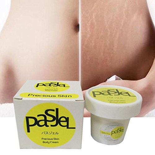Effective Removal Acne Scar Stretch Marks Cream Fat Scar Striae Gravidarum Treatment ()