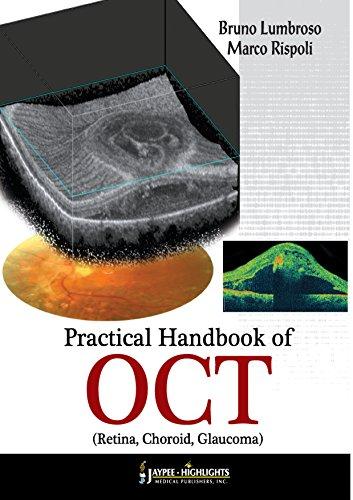 Download Practical Handbook of OCT Pdf
