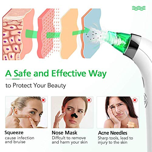 Blackhead Remover Pore Vacuum Cleaner - LONOVE Upgraded Blackhead Vacuum Rechargeable Face Vacuum Comedone Extractor Tool for Blackhead Whitehead Acne Removal, 5 Adjustable Suction Power and 4 Porbes