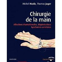 Chirurgie de la main: Affections rhumatismales, dégénératives. Syndromes canalaires (French Edition)