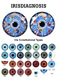 Anatomical Worldwide PO26E Iridology Laminated Chart