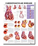 Cardiovascular Disease Anatomical Chart, Anatomical Chart Company Staff, 1587798417
