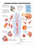 Understanding Hypertension Anatomical Chart, Anatomical Chart Company Staff, 1587794217