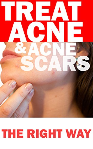 Treat Acne & Acne Scars Ebook