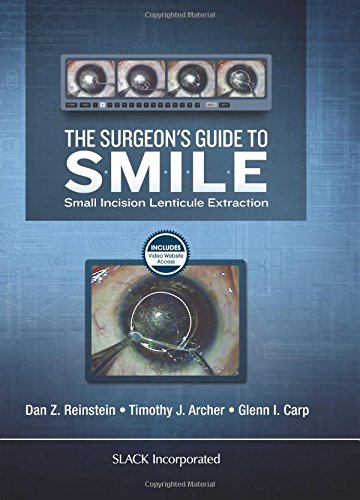 The Surgeon's Guide to SMILE: Small Incision Lenticule Extraction