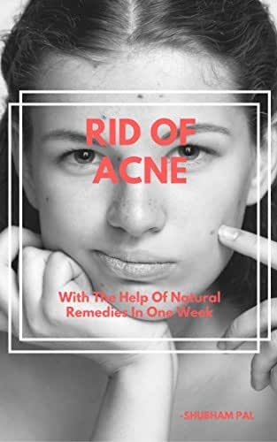 HOW TO GET RID OF ACNE: With The Help Of Natural Remedies In One Week
