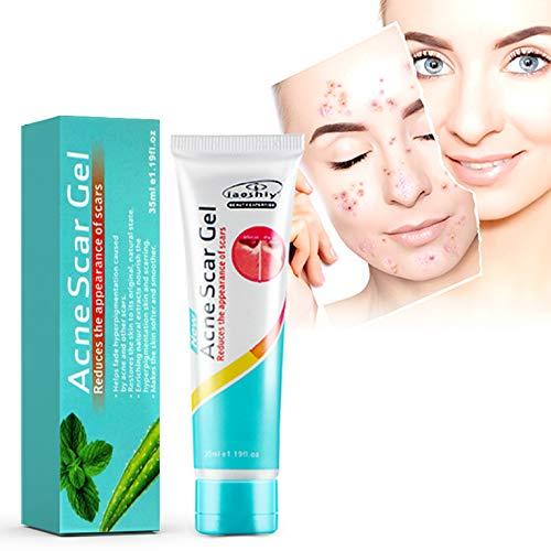 Vibrant Glamour Scar Removal Cream, Repair Old & New Acne Stretch Mark Burn Scar for Men Women (1 oz) ()