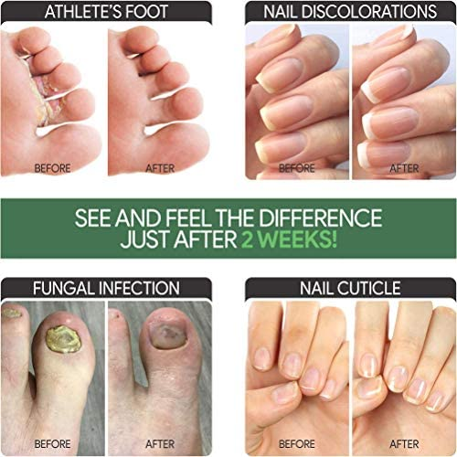 EXTRA STRONG Nail Fungus Treatment -Made In USA, Best Nail Repair Set, Stop Fungal Growth, Effective Fingernail & Toenail Health Care Solution, Fix & Renew Damaged, Broken, Cracked & Discolored Nails 51LMlfLhR9L