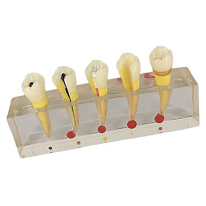Buy Phenovo Teeth Materials Lab Teeth Pulp Disease Clinical