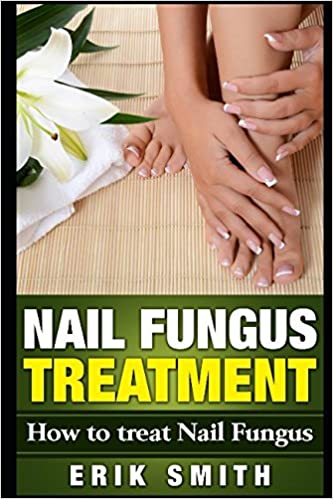 Nail Fungus Treatment: A beginners guide to Nail Fungus Treatment ...