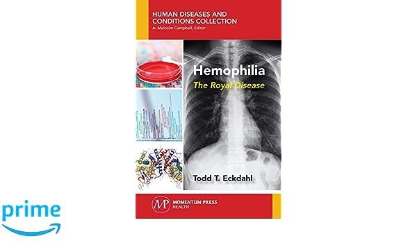 Hemophilia The Royal Disease Todd T Eckdahl