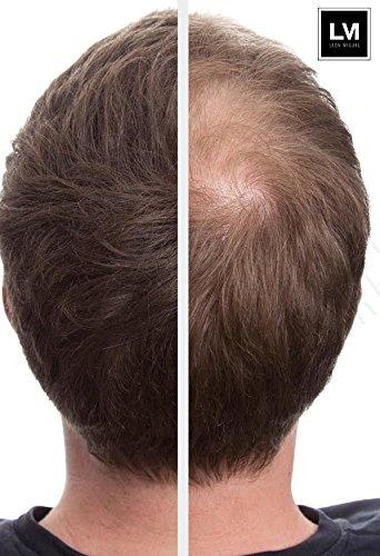 Leon Miguel® HAIR FIBER - Espesamiento del cabello - Fibras capilares de calidad premium / Fibras reconstructoras con efecto inmediato para disimular la ...