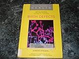 Birth Defects, Edward Edelson, 0791000583