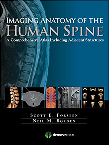 Buy Imaging Anatomy Of The Human Spine A Comprehensive Atlas